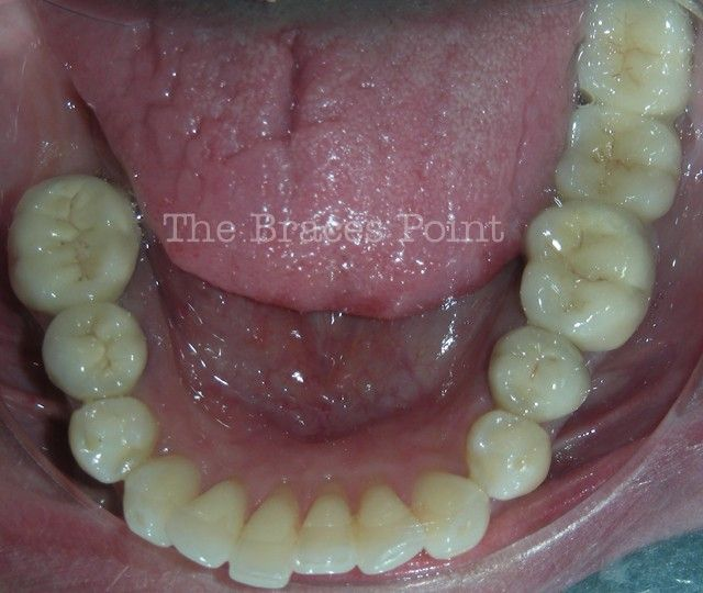 Lower Occlusal - Post