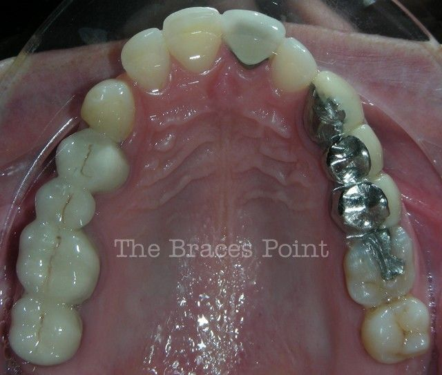 Upper Occlusal - Post