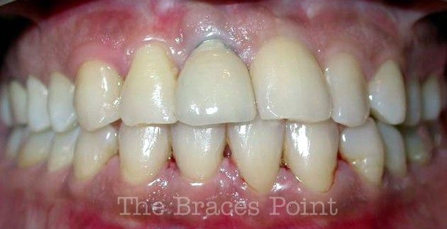 After Implant and Crown