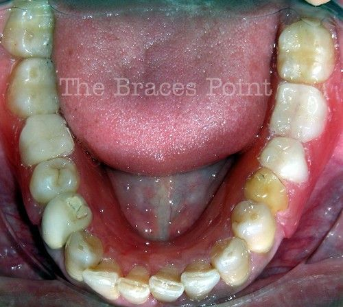 Lower occlusal with denture